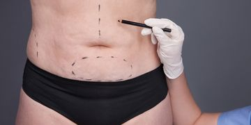 Combinar intervenciones de cirugía estética en una sola sesión