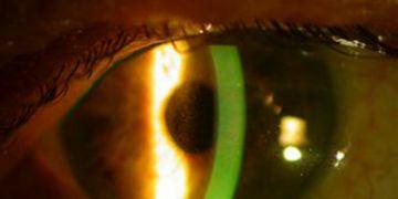 6 pasos para enfrentarnos al glaucoma