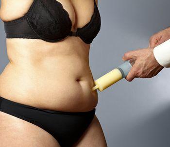 Dr. Ibrahim Fakih nos habla de la liposucción