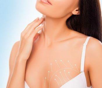 Elevación mamaria, mamopexia o pexia mamaria