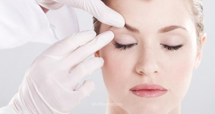 Blefaroplastia sin cirugía
