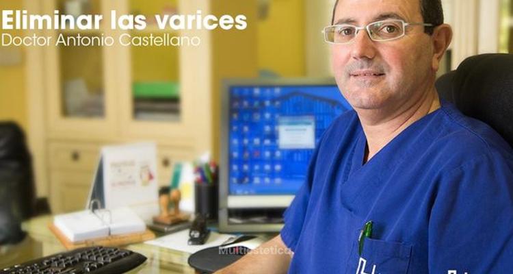 Eliminación de varices sin cirugía
