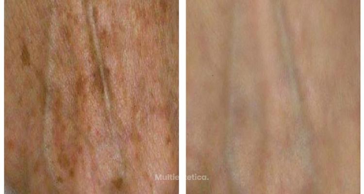Manchas en la piel: El láser que las elimina y rejuvenece al mismo tiempo