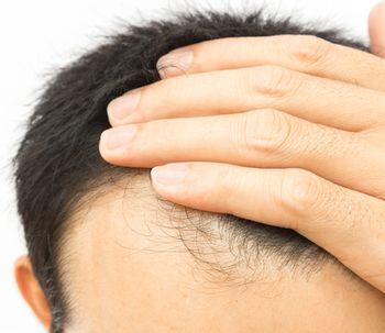 Recupera tu pelo gracias al trasplante capilar