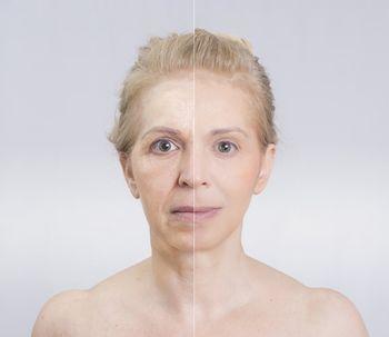 Mesoterapia o Mesoplastia