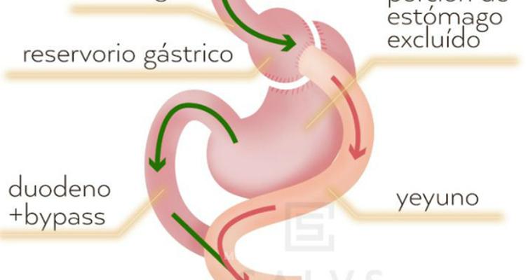 ¿Cómo funciona el by pass gástrico?