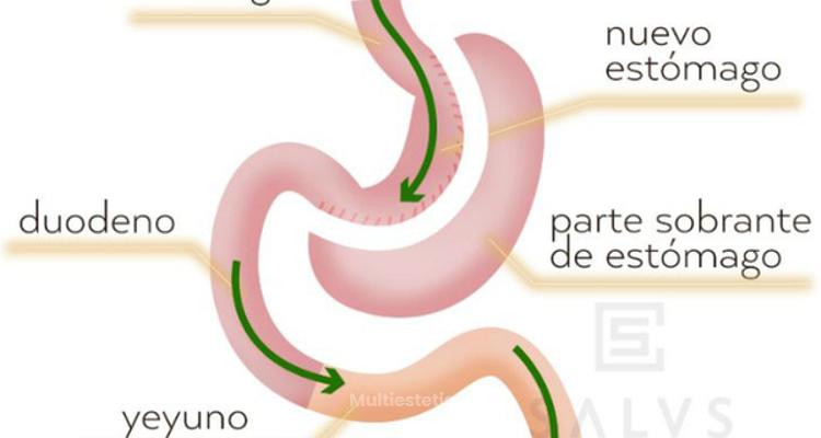 ¿Cómo es el tratamiento de tubo gástrico?