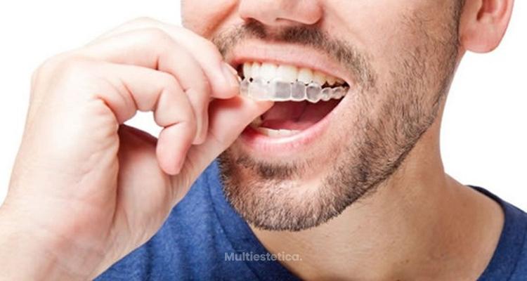 Consejos para cuidar de una ortodoncia Invisalign en Navidad