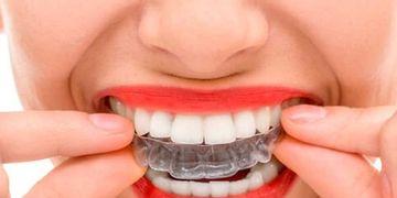 Ortodoncia invisaling