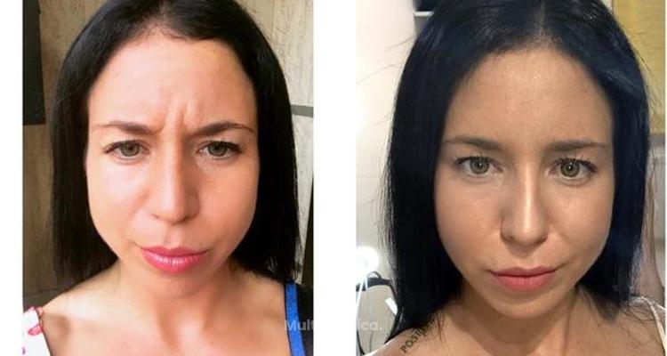 Qué debes saber sobre la Toxina Botulínica Tipo A o Botox
