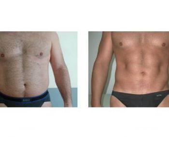 """""""Si el sobrepeso no excede el 10% podemos realizar una liposucción"""""""