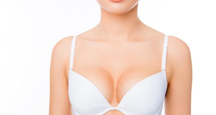 9 preguntas frecuentes sobre la Mamoplastia de aumento
