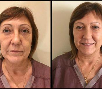 Hilos faciales, gran solución para rejuvenecer el rostro
