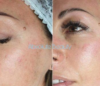 Consigue una piel unificada efecto maquillaje gracias al BB Glow