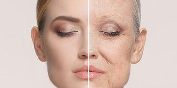 Lifting Facial y de Cuello. Rejuvenecimiento facial. Mejorar el aspecto de tu cara y cuello.