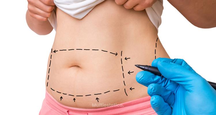 Todo lo que debes saber sobre el postoperatorio de la abdominoplastia