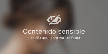 Lipo Vaser + Renuvion: técnica exclusiva en Madrid