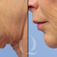Mejora la flacidez de la piel sin cirugía gracias a Bodytite