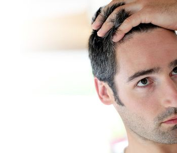 Caspa en el cuero cabelludo, ¿cómo identificarla y combatirla?