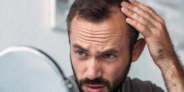 ¿Qué es la foliculitis decavante y cómo se puede tratar?