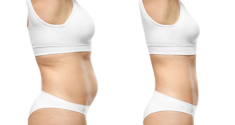 Lipo Vaser, la alternativa a la liposucción convencional