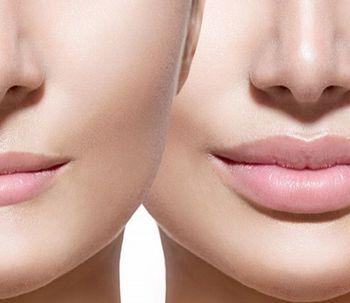 Aumento y perfilado de Labios, a propósito de un caso
