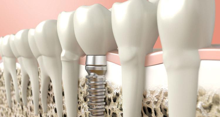 Implantes dentales: reemplazo de dientes