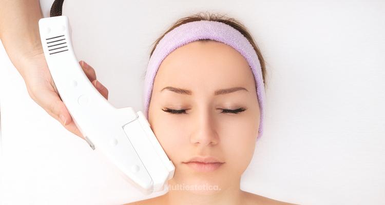 Depilación láser en la cara y aparición de manchas
