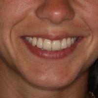 Los alineadores invisibles en Ortodoncia