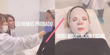 Lo hemos probado: Bioremodelación facial