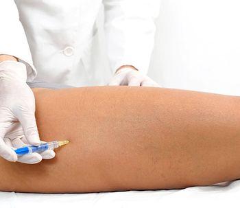 ¿Qué es la mesoterapia y para qué sirve?