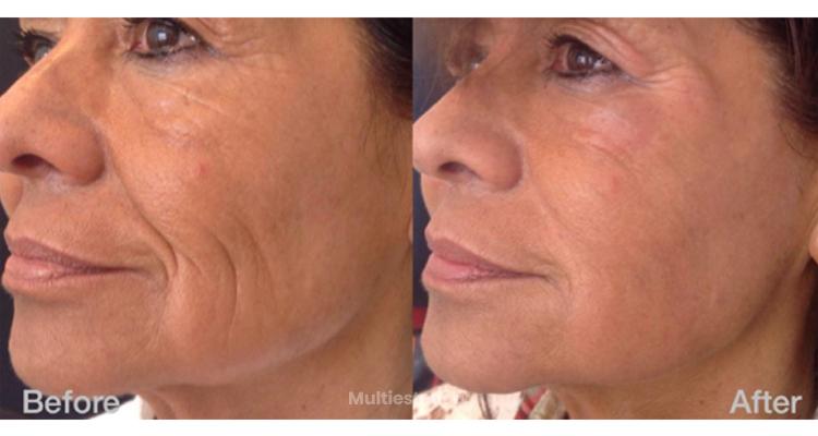 Hyaluron Pen: Novedosa técnica de aumento de labios