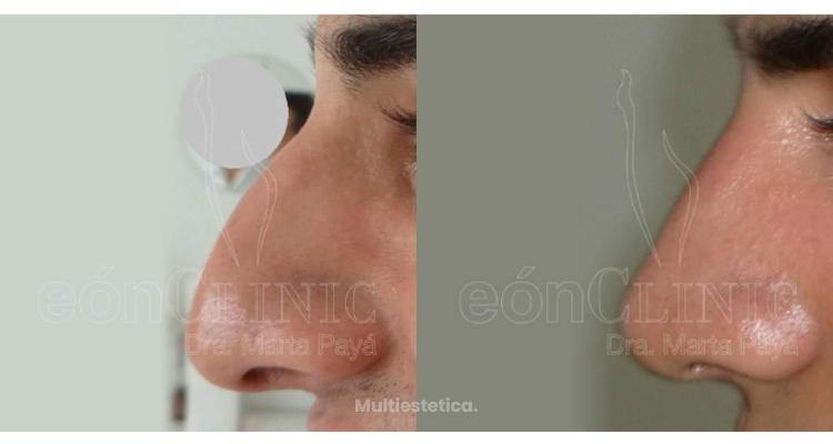 Mejora el aspecto de tu nariz sin tener que pasar por quirófano