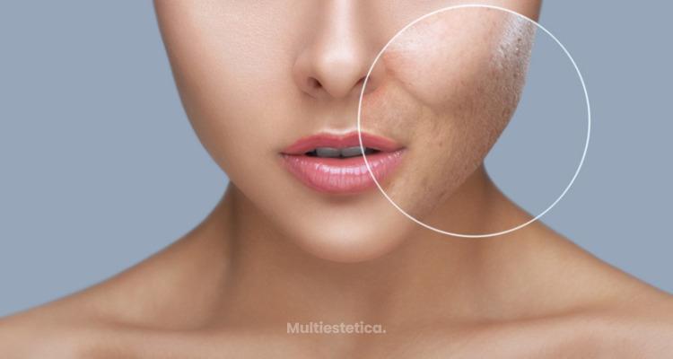Elimina las cicatrices del acné con Punch grafting