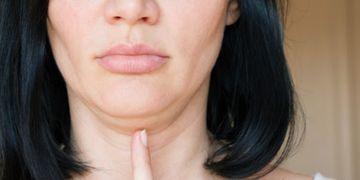¿Qué es la liposucción facial?
