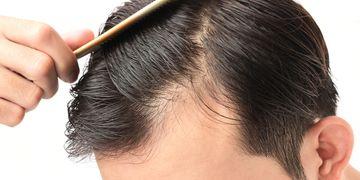 """""""Contra la alopecia no existen los milagros, sí las soluciones. Y cada paciente tiene la suya"""""""