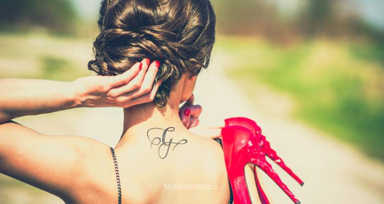 Consejos a tener en cuenta antes de eliminar un tatuaje