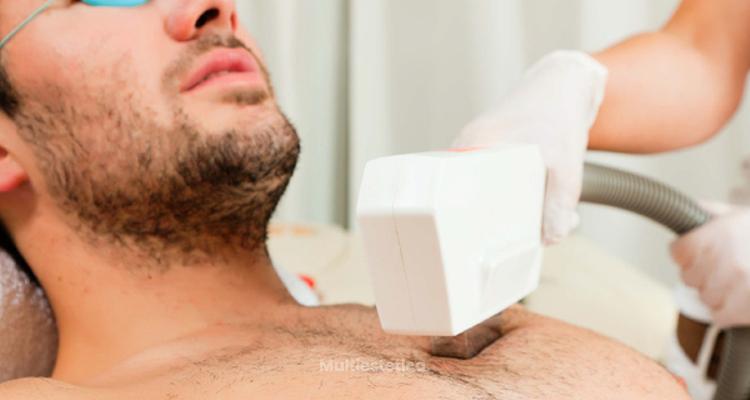 La depilación láser también es para los hombres