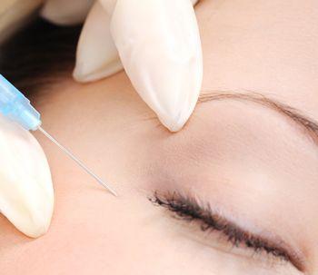 El botox se usa más para combatir migrañas que para eliminar arrugas