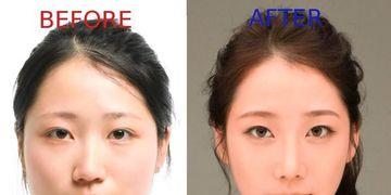 Corea del Sur, los mayores consumidores de cirugía plástica
