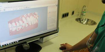 Invisalign, la ortodoncia invisible de 'quita y pon'