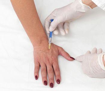 Todas las ventajas del bótox como producto estético (y médico)
