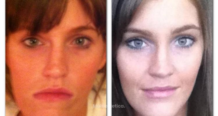 La cirugía estética le devuelve la sonrisa a los 25 años