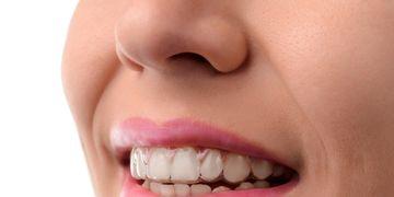 ¿Qué es el sistema de ortodoncia invisible Invisalign?