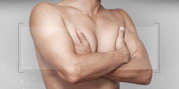 Causas y soluciones de la ginecomastia