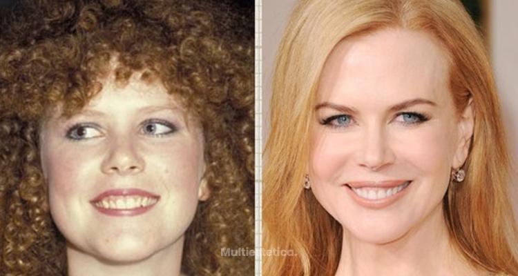 Los 5 retoques faciales más habituales de las famosas