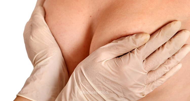 ¿Es posible una elevación de pecho con mínimas cicatrices y además que sea duradero en el tiempo?