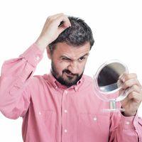 ¿Preocupado por la pérdida de cabello? Fuera complejos con Clínicas DH