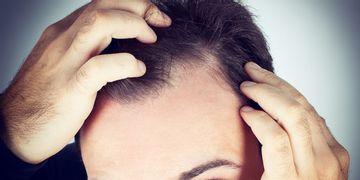 ¿Se podría llegar a reproducir pelo humano con células capilares propias?