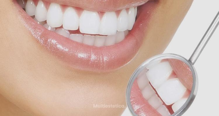 Volver a sonreir gracias al blanqueamiento dental fotodinámico